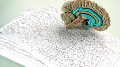 Νευροψυχολογική εξέταση
